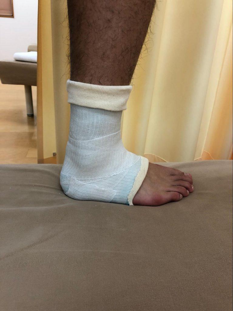 足首捻挫固定の良い例